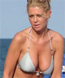 Tara reid breast implants